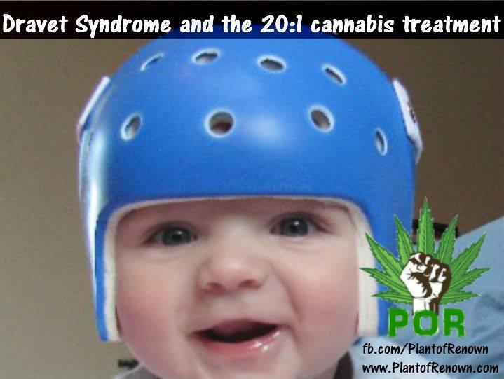 cannabis-dravet-syndrome.jpg