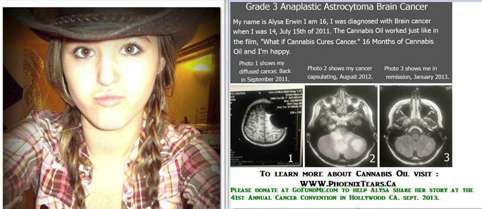 cannabis-oil-brain-cancer.jpg