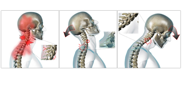 Whiplash is a series of movement with first compression forces, then hyper-extension, and then hyper-flexion. The most commonly damaged structures are ligaments.