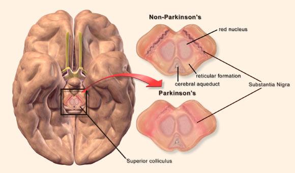 image_3932-Parkinsons-Disease.jpg