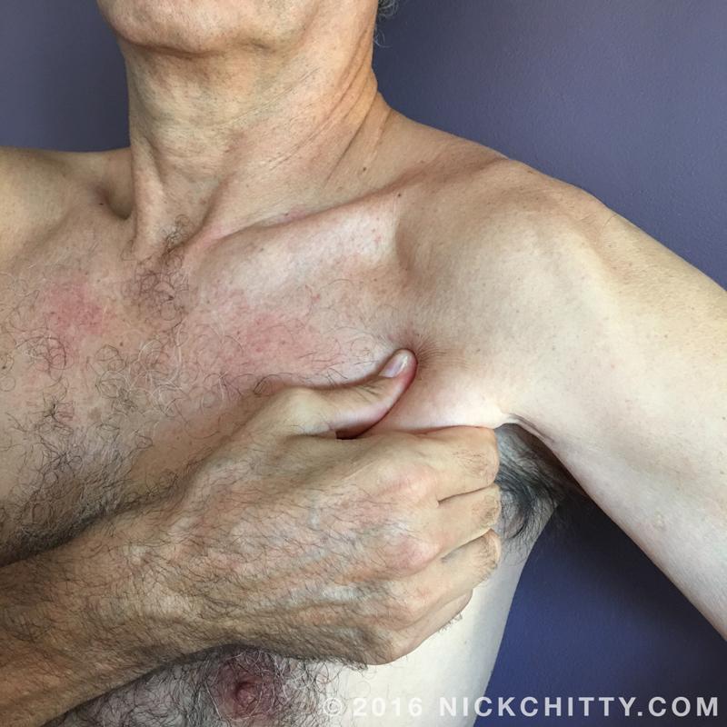 Shoulder - Pectoralis Major
