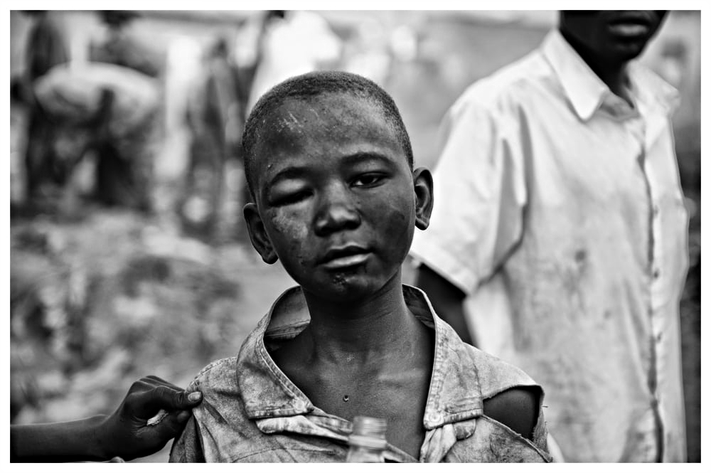 A Slum Boy Shows Off HIs Beatings From The Slum Guards.