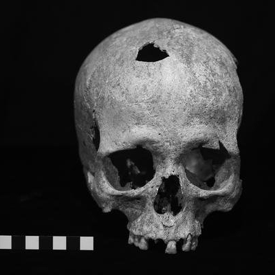 2griga_cyprus skull from bronze age.jpg