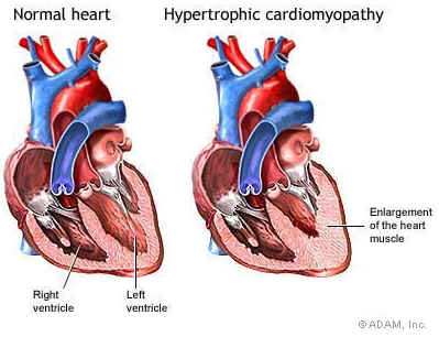 Hypertrophic+Cardiomyopathy.png