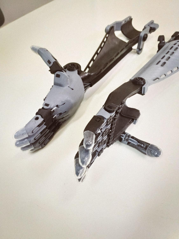 Protese-impressao-3d