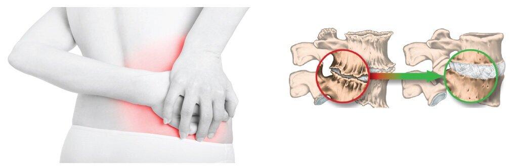 Sciatalgia+mal+di+schiena+ernia+del+disco.001.jpg