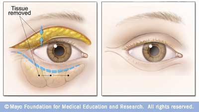 blepharoplasty illustration