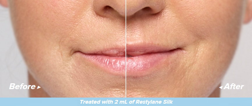Restylane-Silk-Before-and-After.png