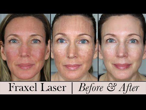 Laser Treatments — North Shore Plastic Surgery & Med Spa