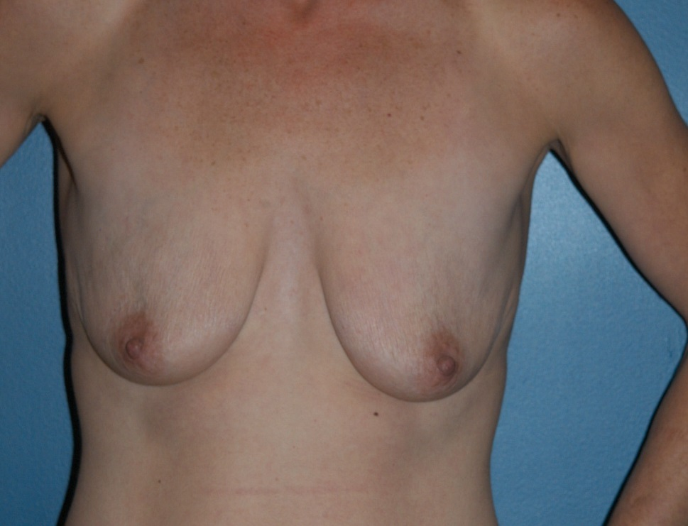 Breast Lift (2).JPG