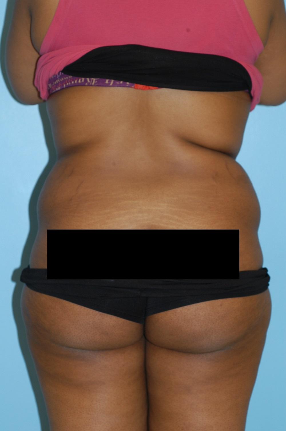 Liposuction 1.JPG