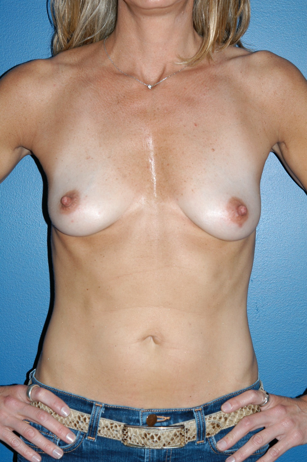 Breast Augmentation 1d.jpg
