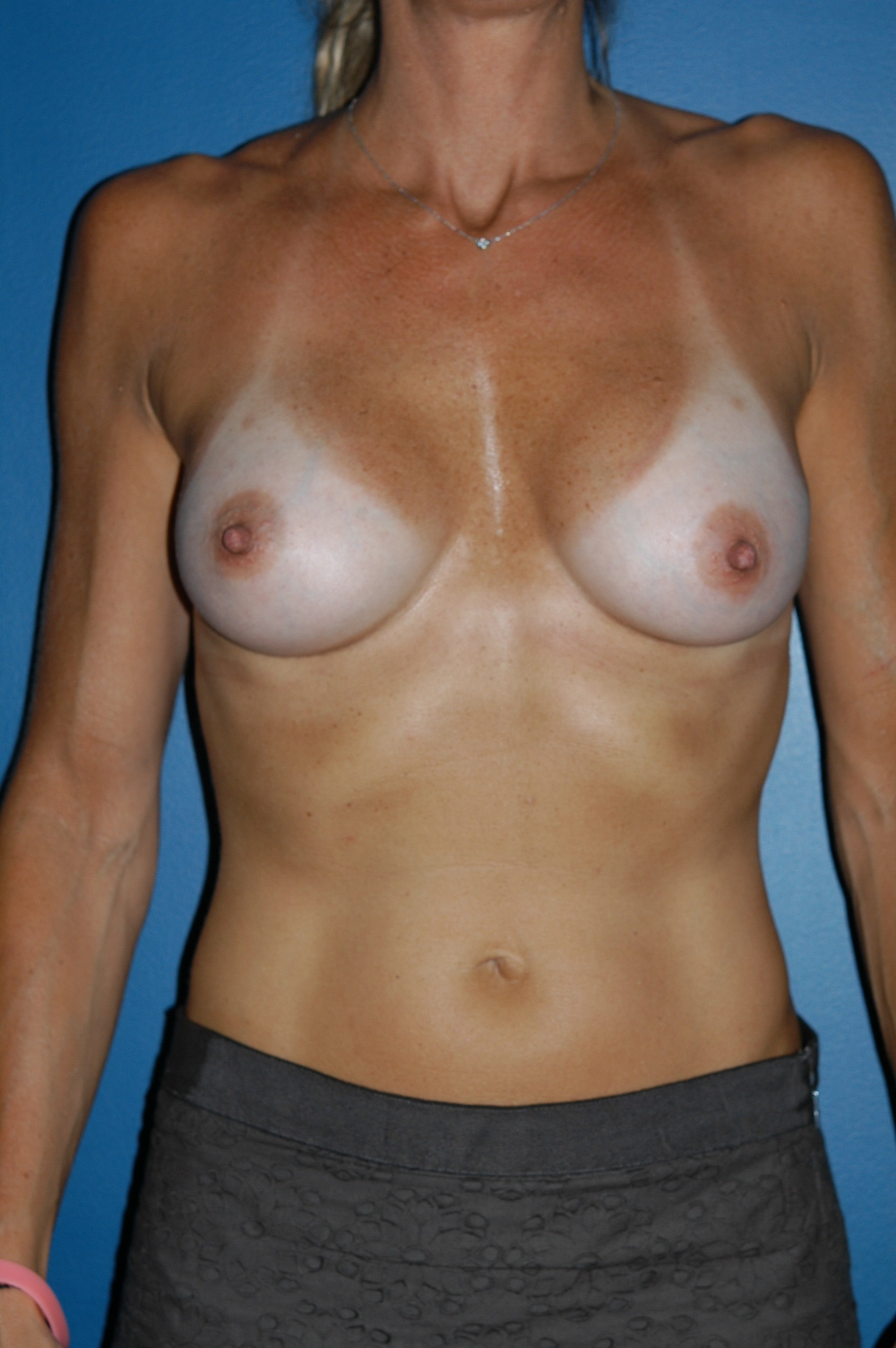 Breast Augmentation 1da.jpg