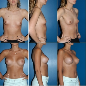 25-35+breast+aug+grid.jpg