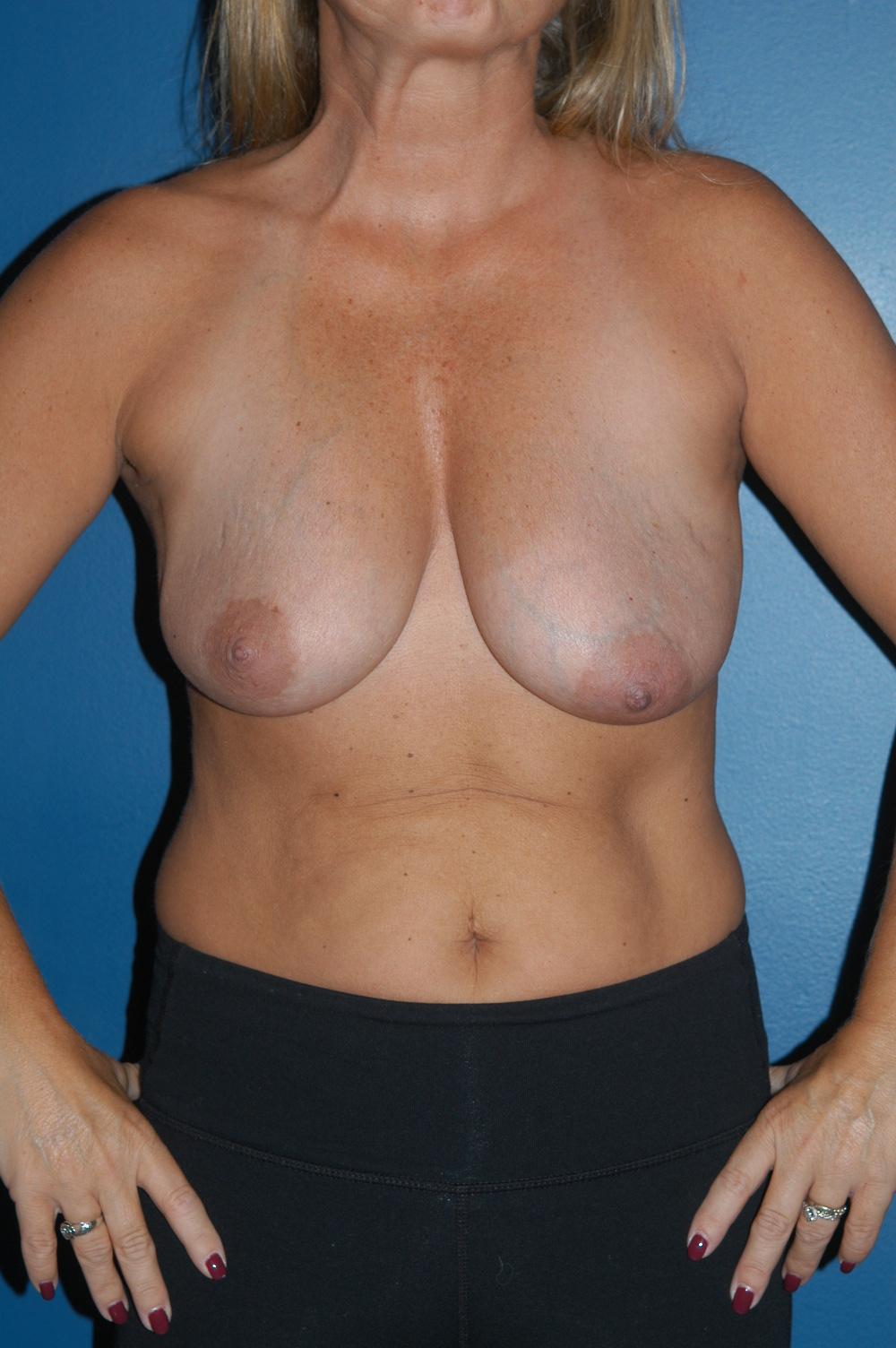 Breast Lift 1a.jpg