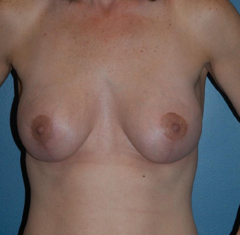 Breast Lift.JPG