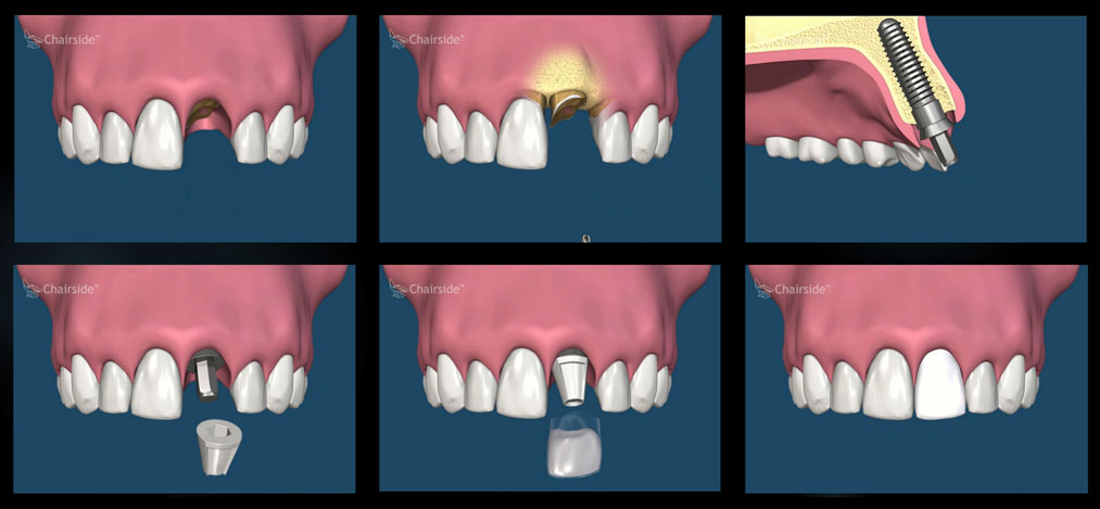 Same Day Tooth Replacement With Dental Implants at Puget Sound Periodontics