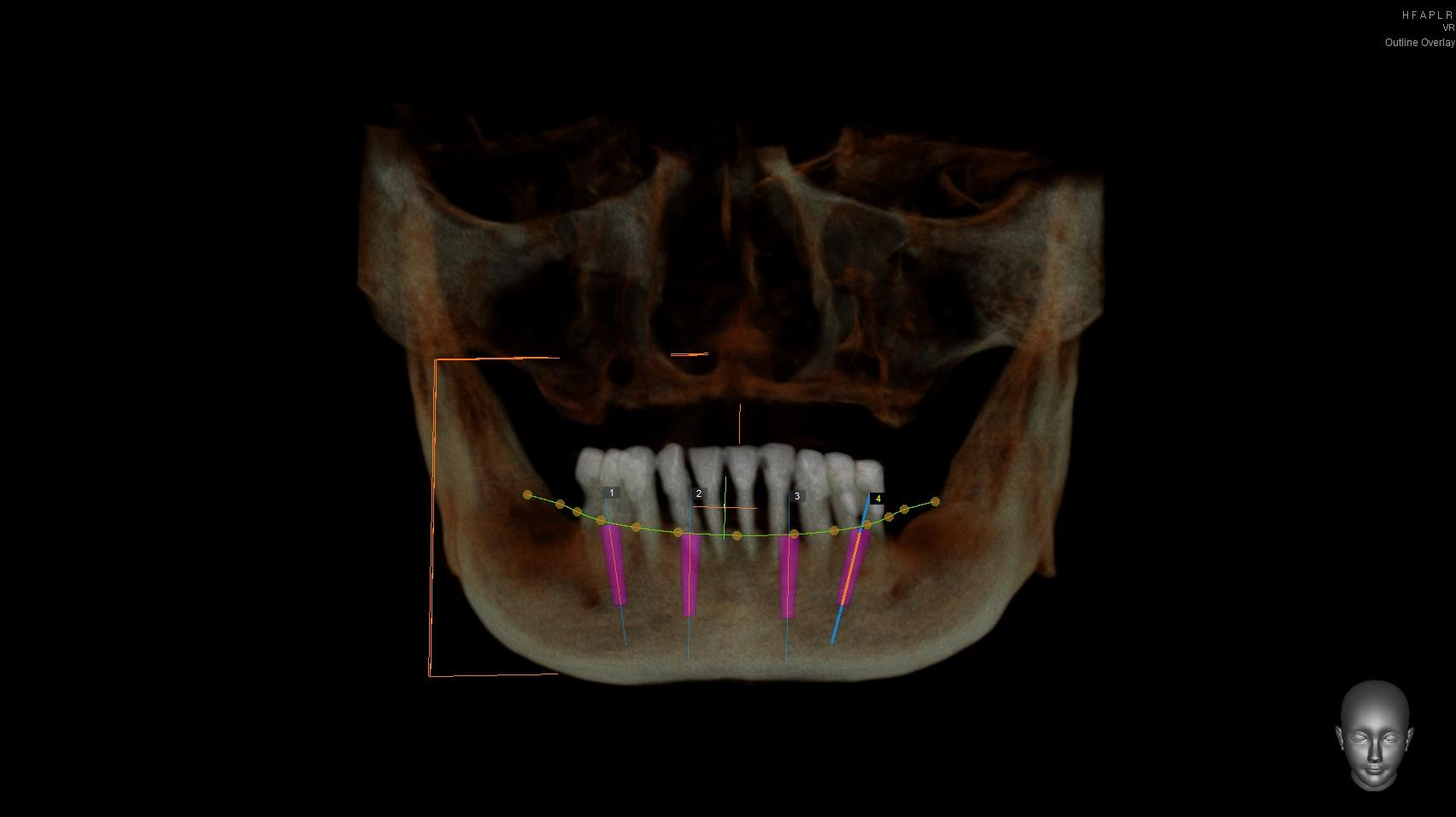 Virtual-Dental-Implant-Planning-Using-Dental-CT-1.jpg