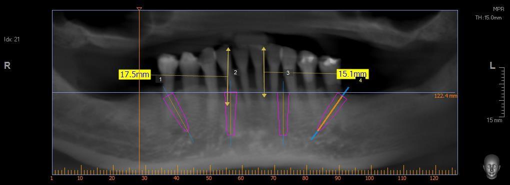 Virtual-Dental-Implant-Planning-Using-Dental-CT-2.jpg