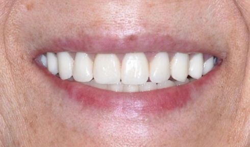 upper and lower implant rehabilitation-1.png