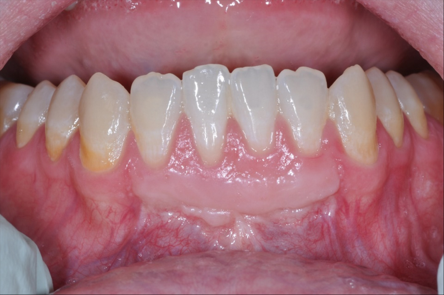 Free Gingival Graft Before and After-1.png