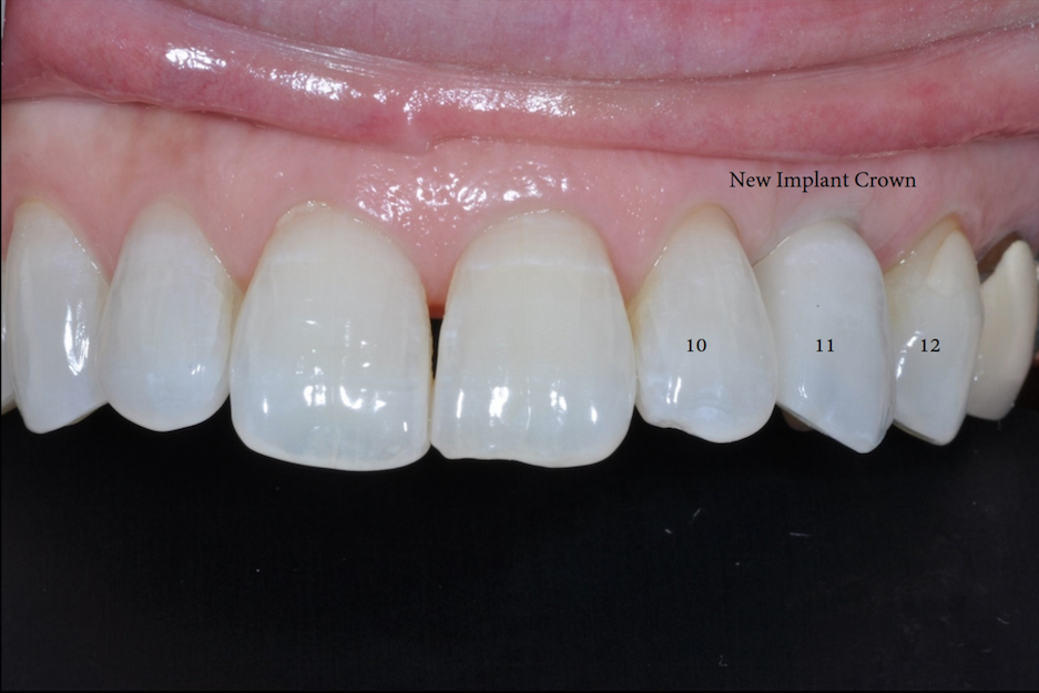 Single Implant Replacement-1.jpg