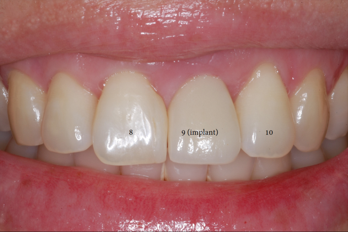 Single Front Tooth Replaced with Implant-2.png