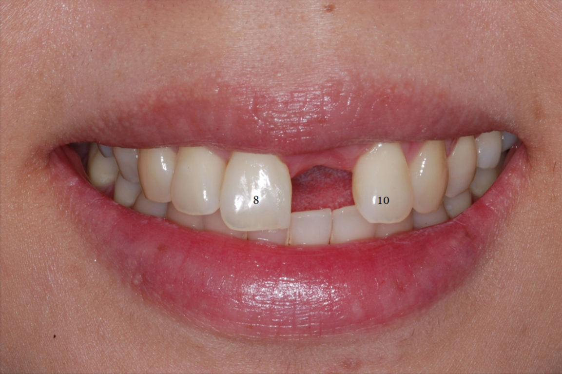 Single Front Tooth Replaced with Implant-3.png