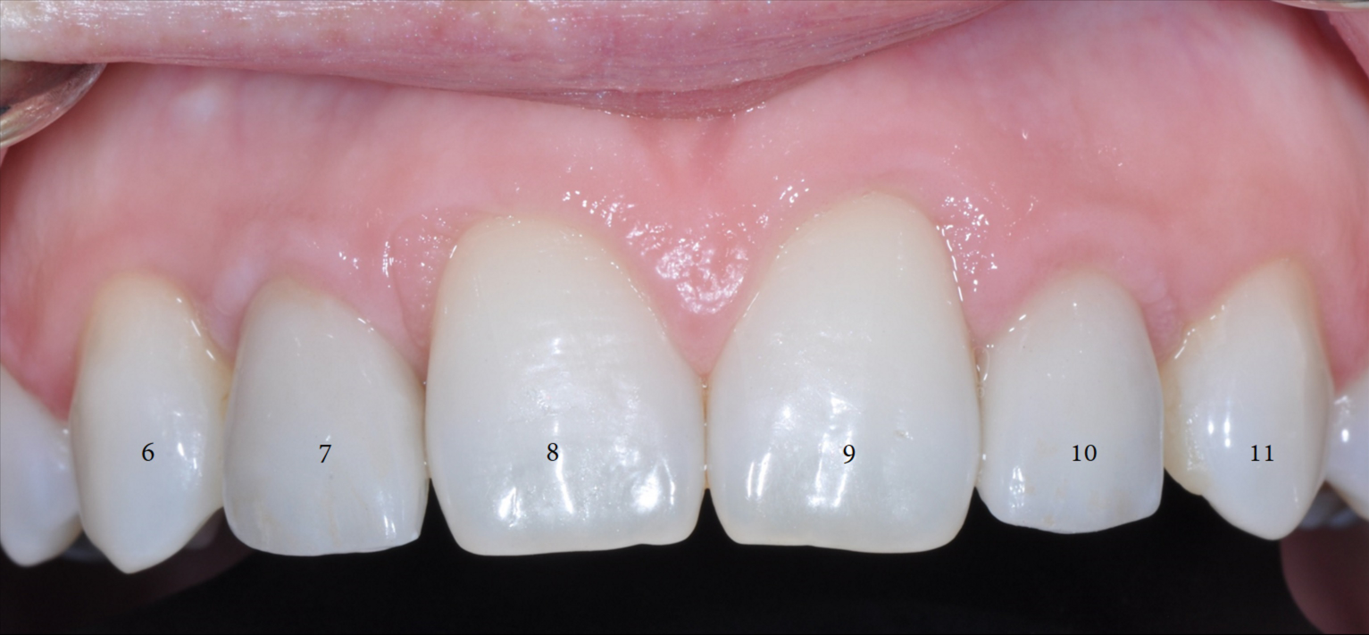 Dental Implant with xrays-2.png