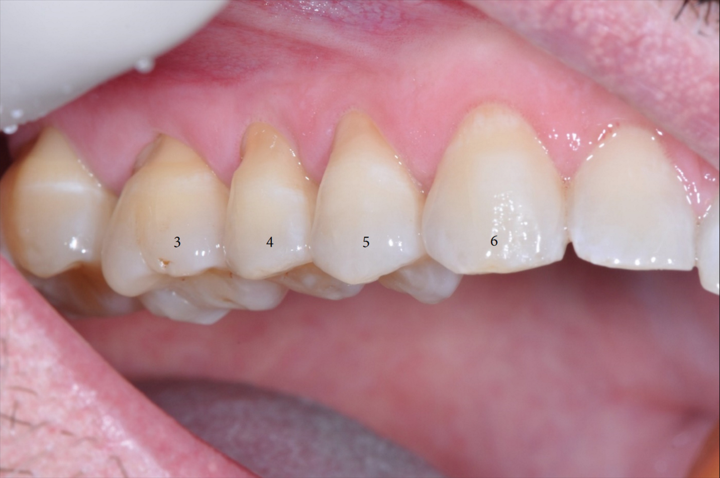 Pinhole Surgical Approach Teeth 3-6-3.png