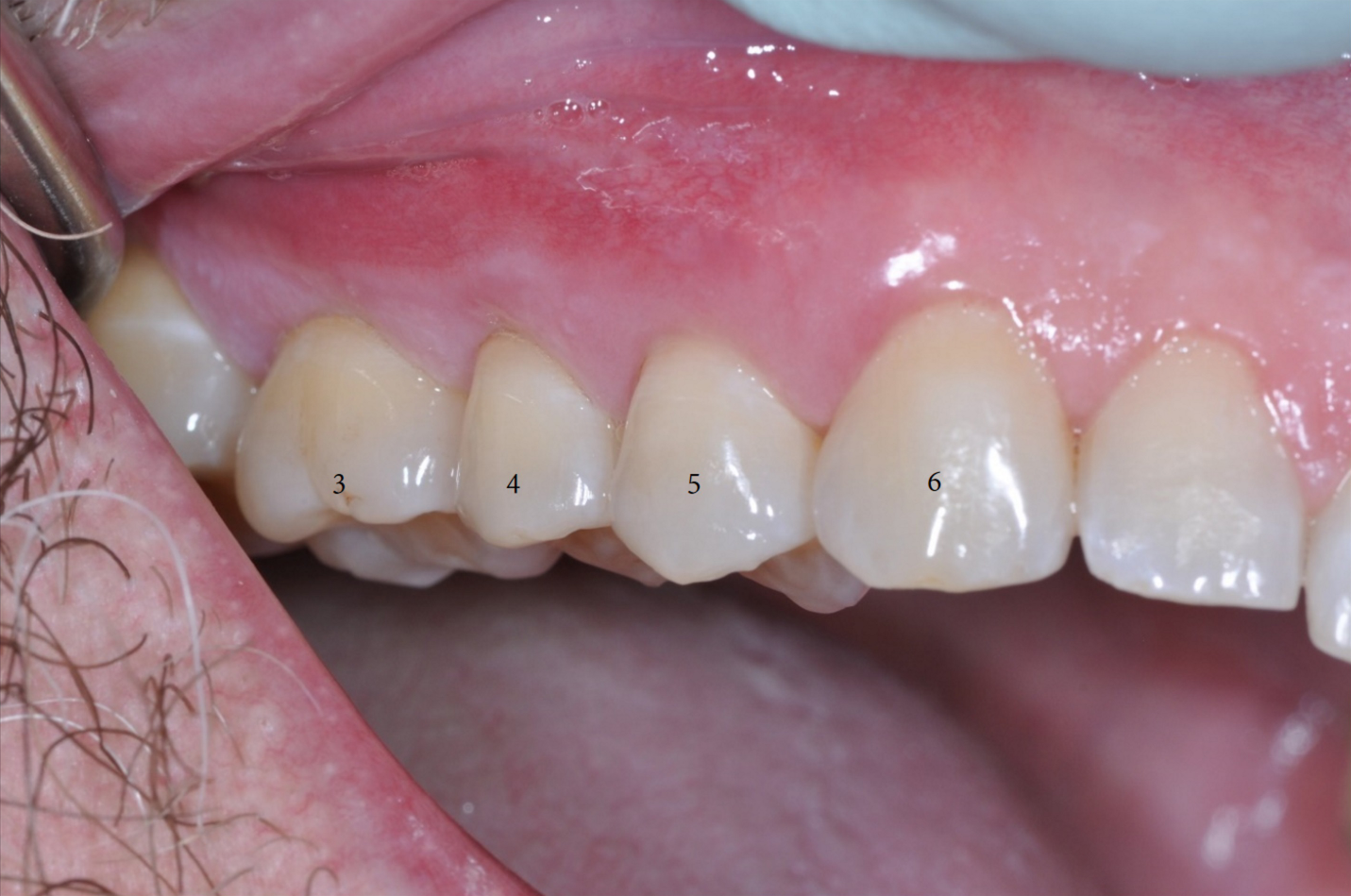 Pinhole Surgical Approach Teeth 3-6-2.png