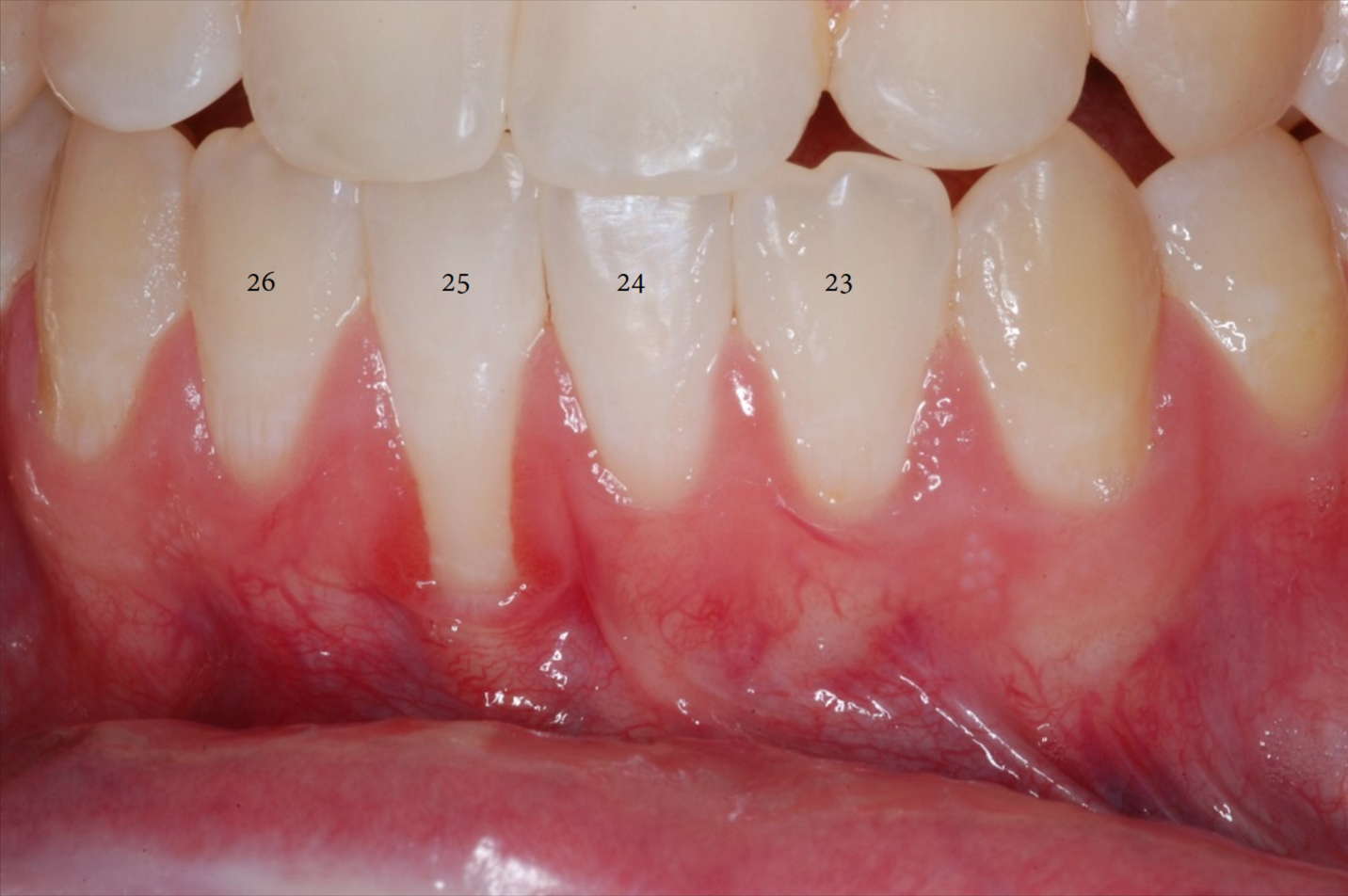 Free Gingival Graft Before and After-3.png