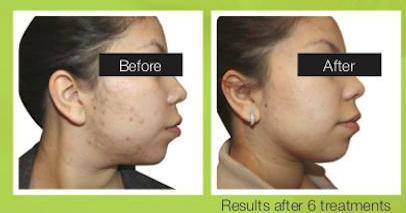 acne pics .png