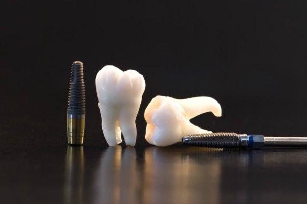 HonestTeeth_implant-restorations.jpg
