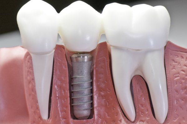 HonestTeeth_dental_implants.jpg