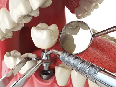 honest teeth dental implant.jpg
