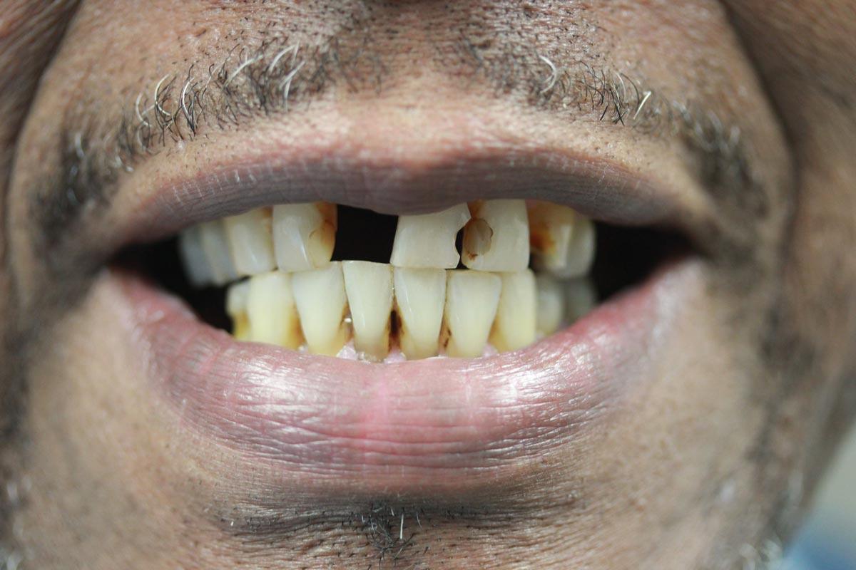 ht-full-mouth-rehab-before.jpg