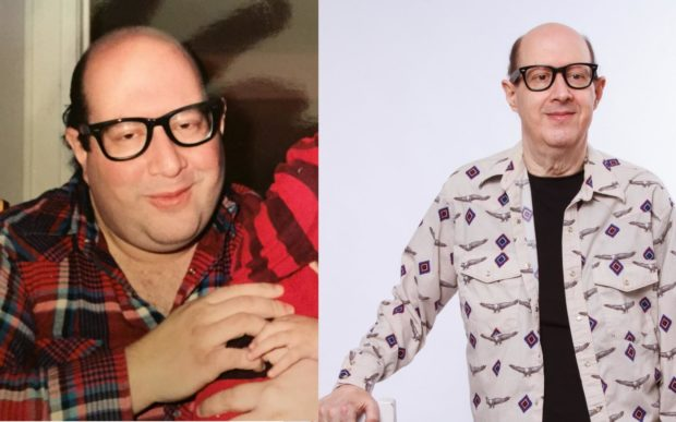 Mike Meltzer Before & After