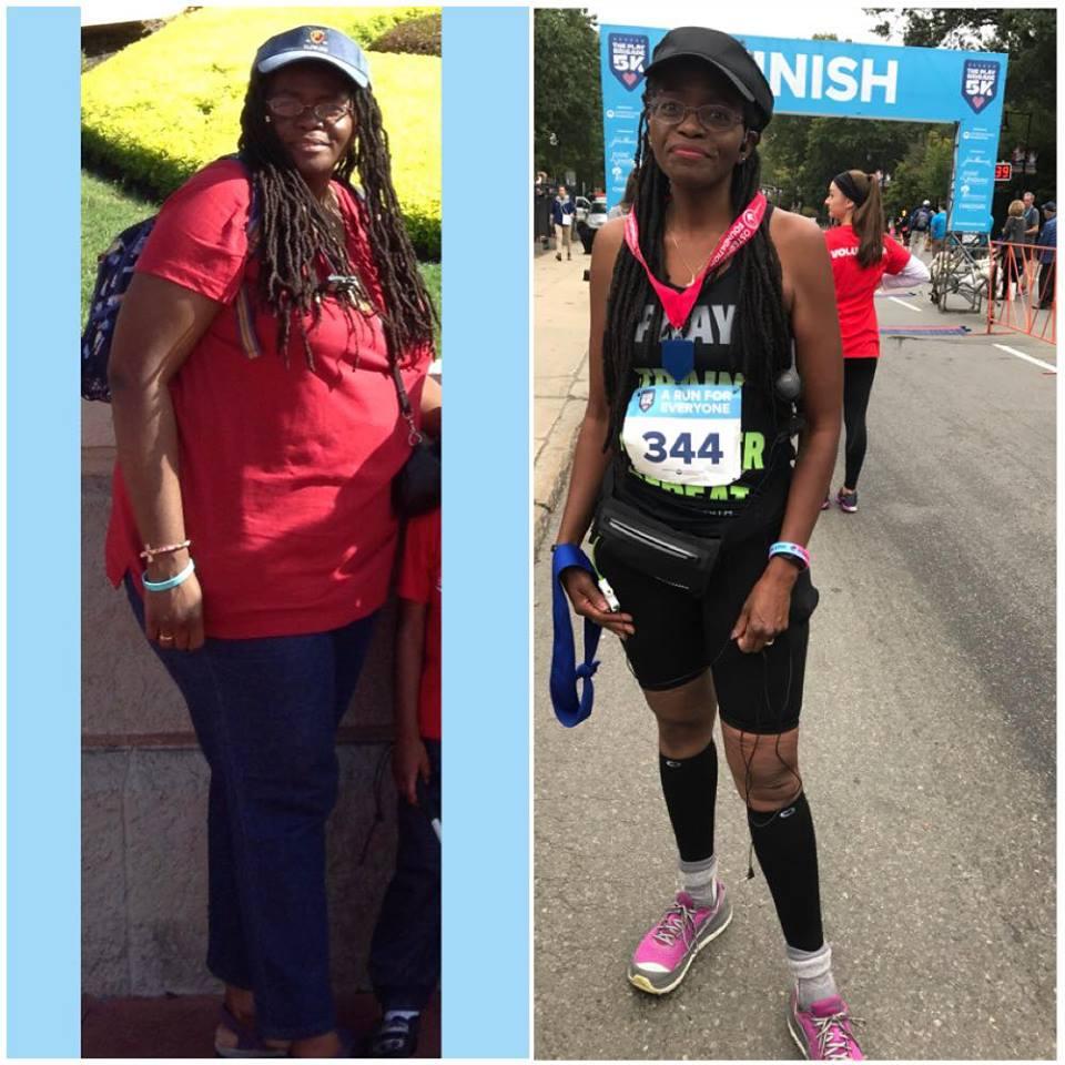 Nalida Before & After