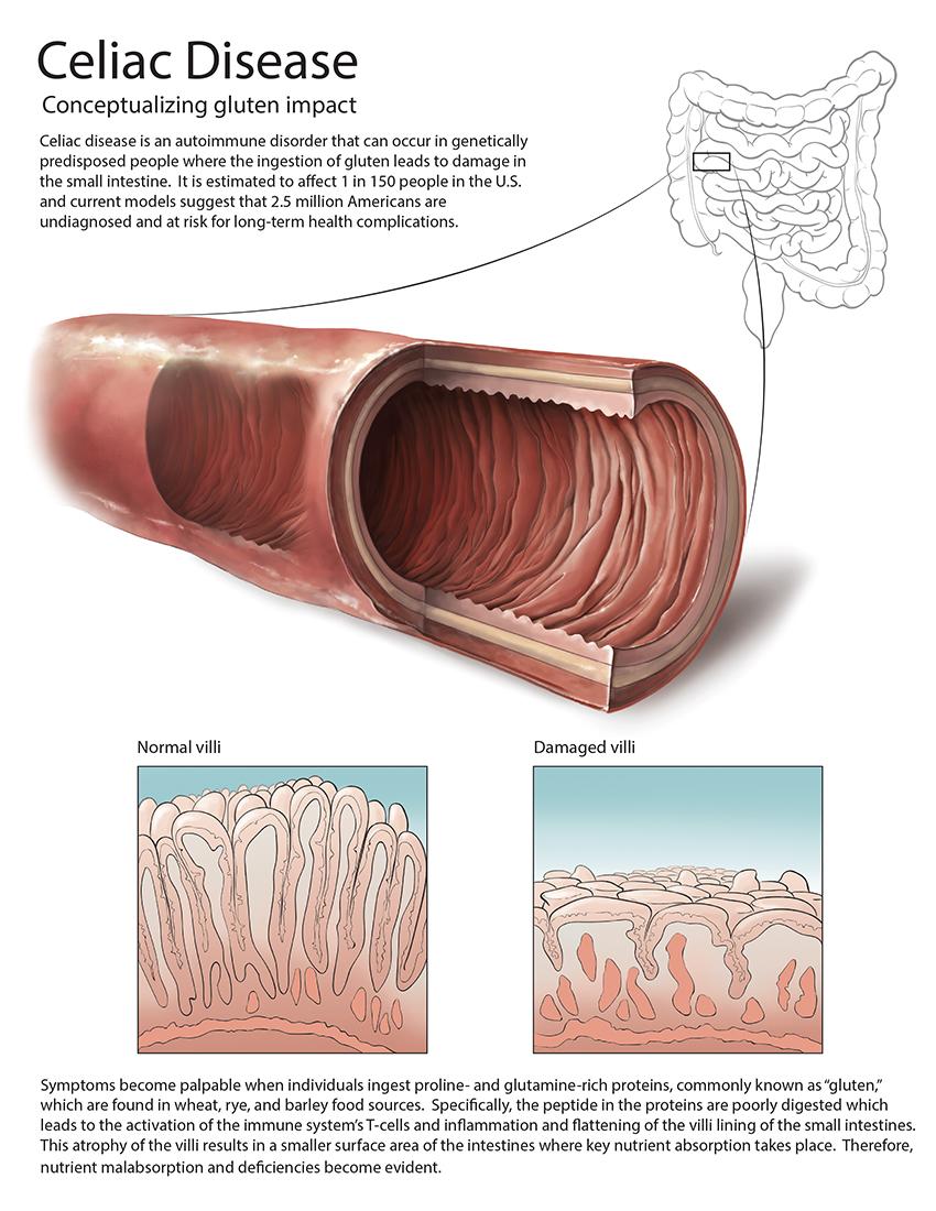 Patient Education: Celiac Disease