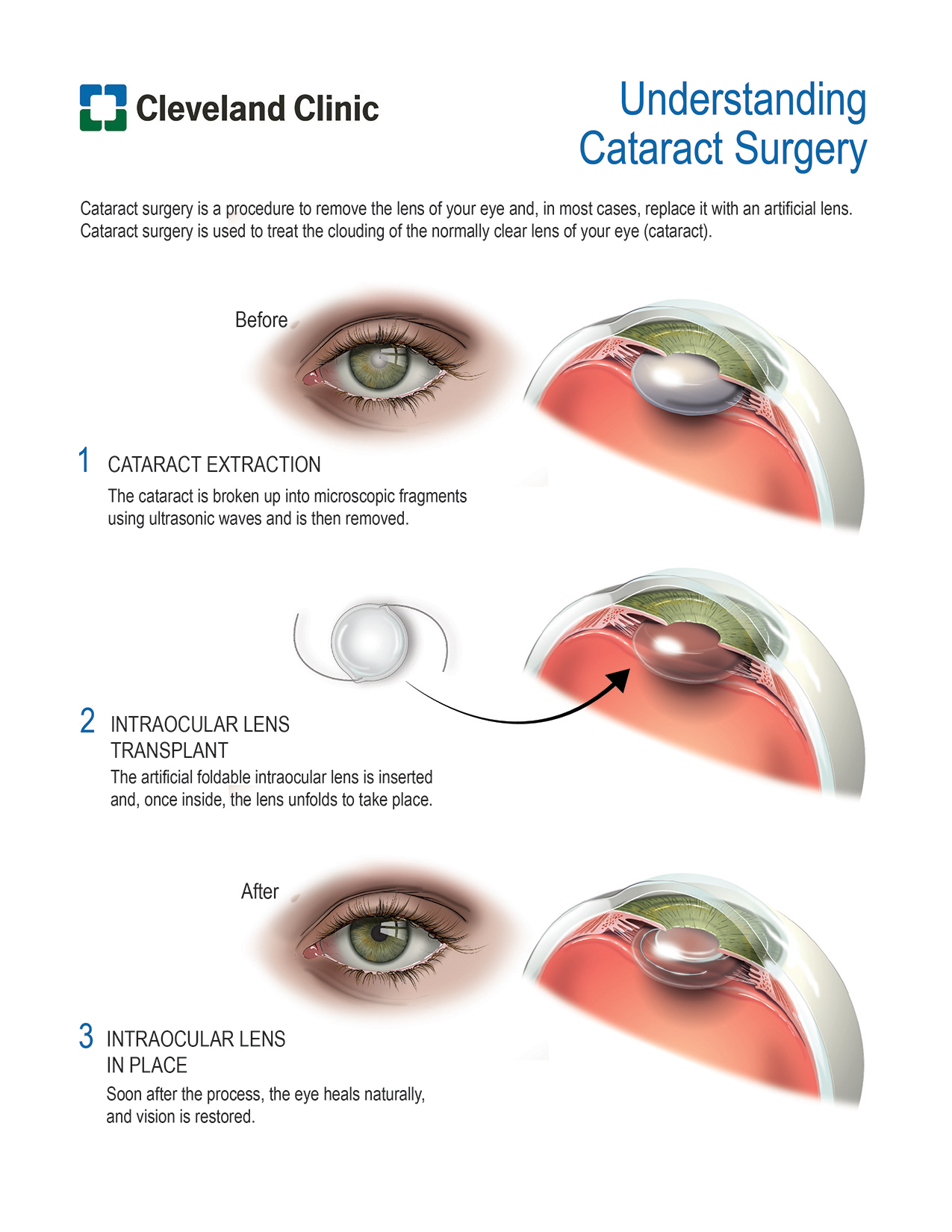 Patient Education: Cataract Surgery