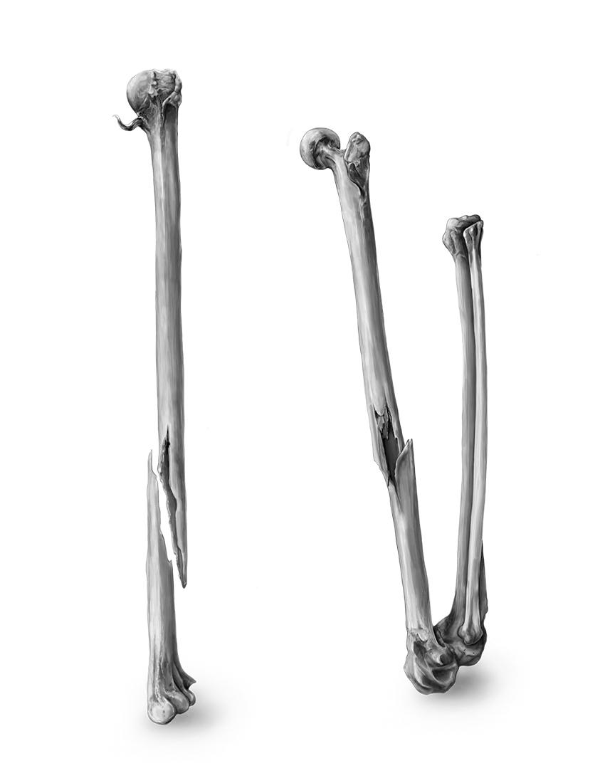 Long Bone: Detail