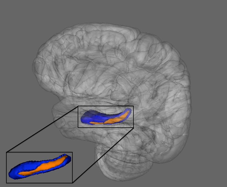 Figure 10.    Utilizing vertex analysis, we observed that the shape of the hippocampus was more relevant than volume in predicting progression of symptoms. Source, Dean & Mittal, 2015, Schizophrenia Bulletin