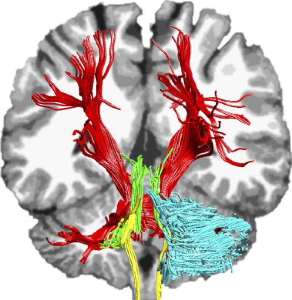 Figure 9.  White matter tracts conecting the cerebellum with thalamus and cortical regions are depicted (Catani et al., 2008)