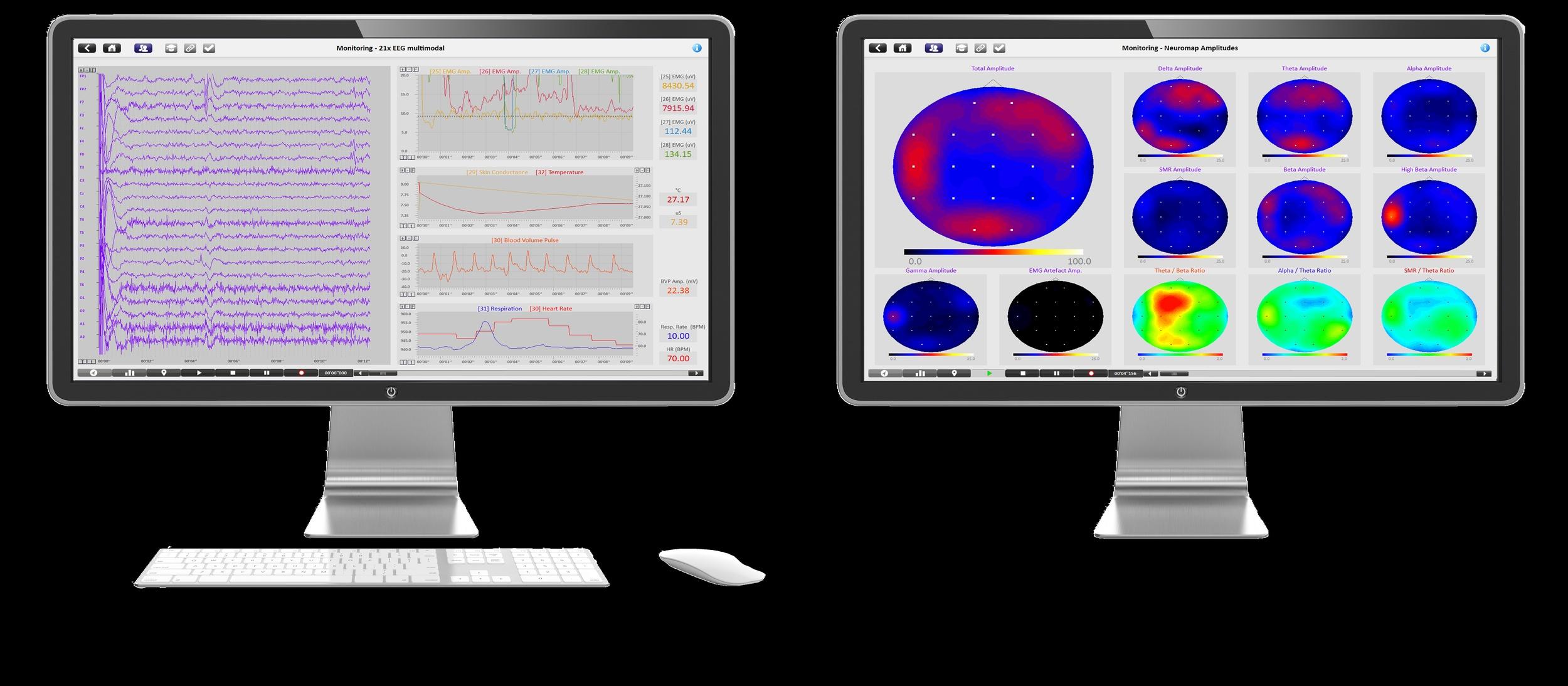 BioTrace+ qEEG and EEG Map