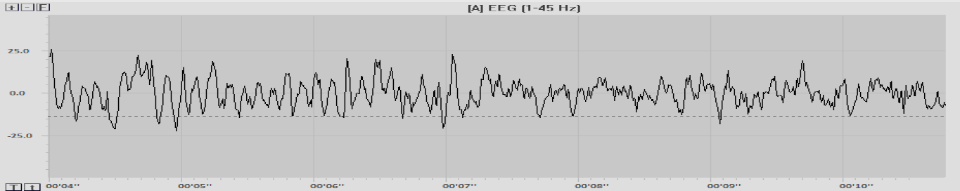 A sample of raw EEG from one site on the scalp