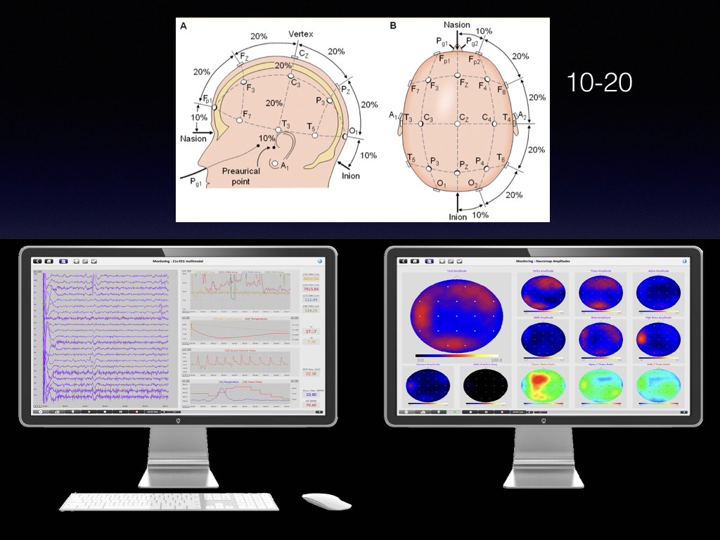 the International 10-20 system and qEEG brain mapping