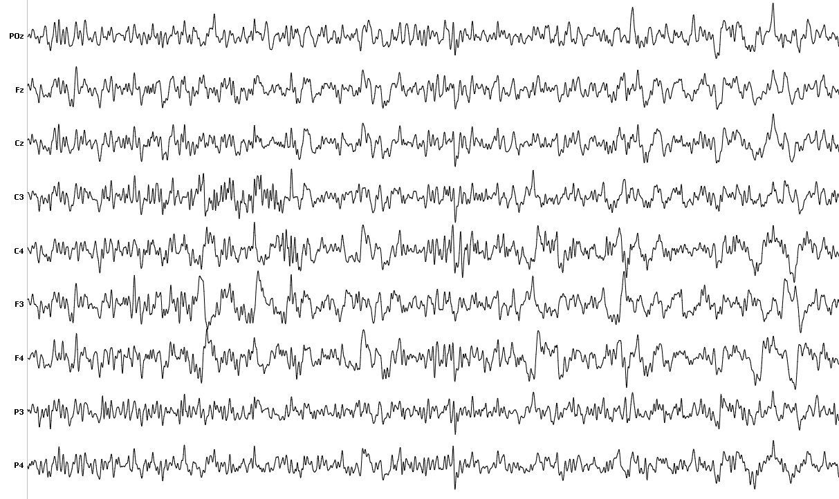 EEG raw recordings are complex patters and cry out for further processing