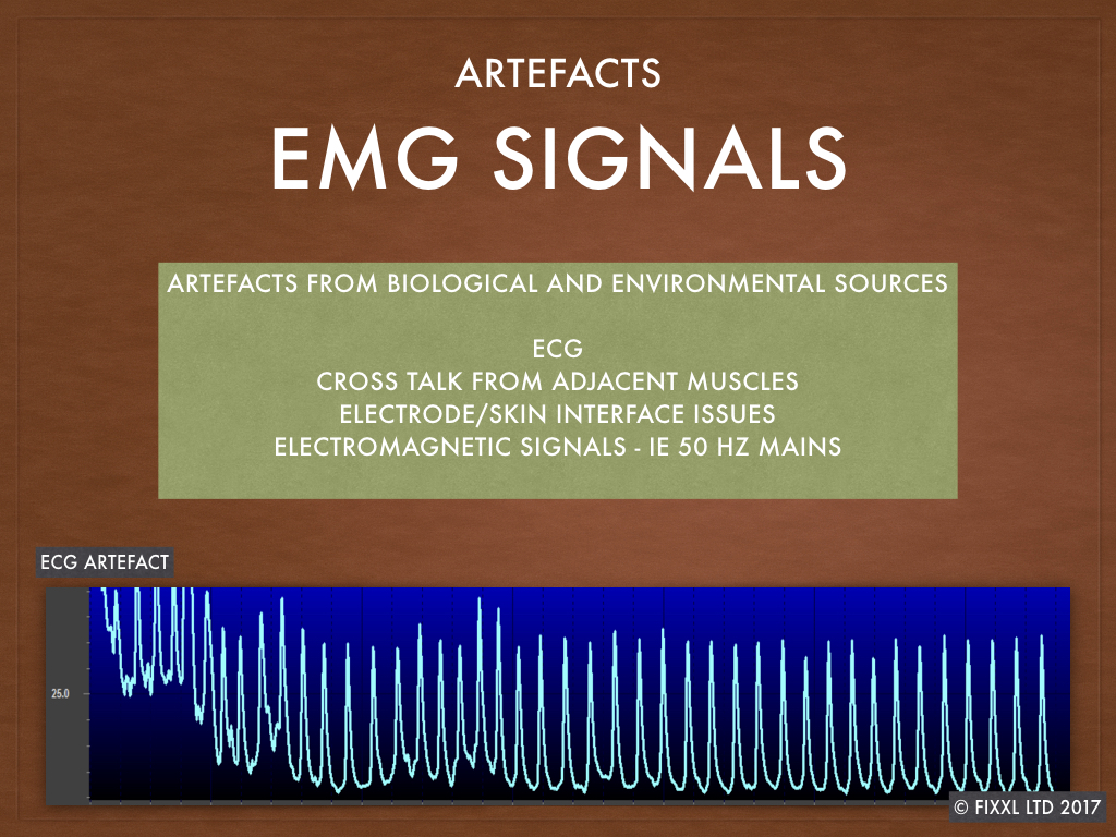 Common sources of EMG artefact