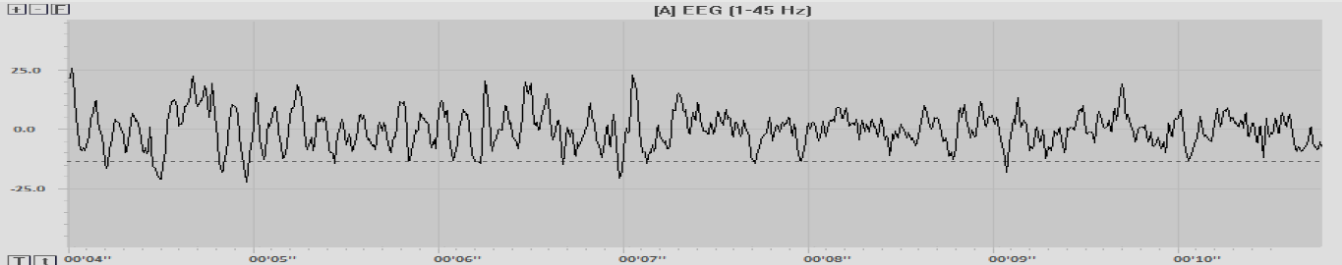 A sample of EEG recorded at an electrode site
